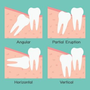 about wisdom teeth extractions