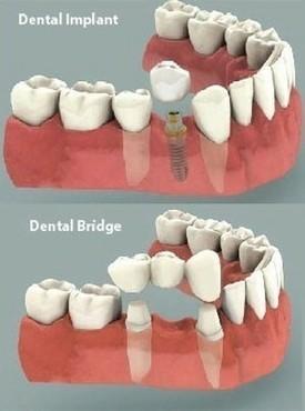 implant-bridge